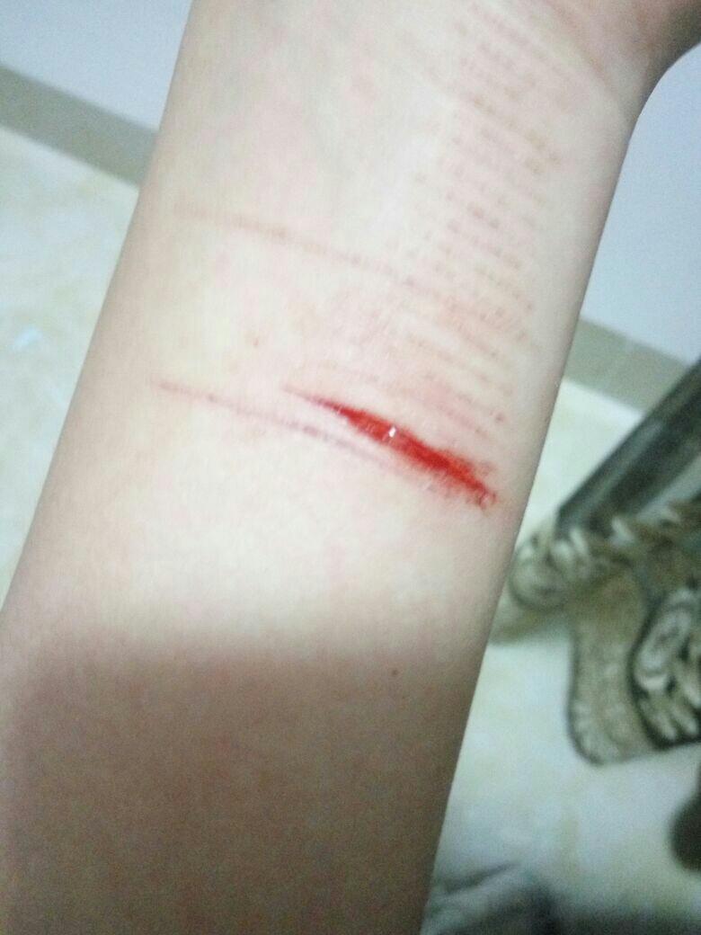 自残割手囹�a_> 女为什么自残会上瘾,一次比一次下手重,这是抑郁症的表现吗?